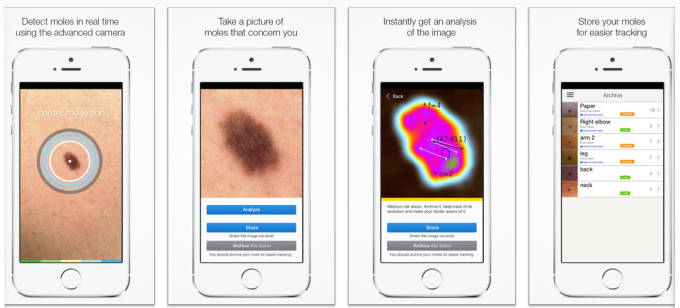 This is SkinVision works. Users take the photo of their mole and then the application uses a complex algorithm that determines whether it is harmful or not and then gives back a color that could either the mole is benign or dangerous.